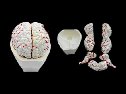 Model of brain and brain artery