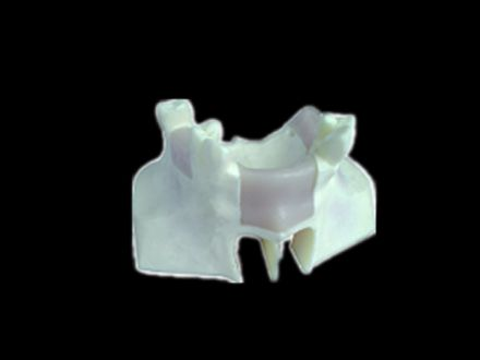 Dental implant operation model including Maxilla and mandible