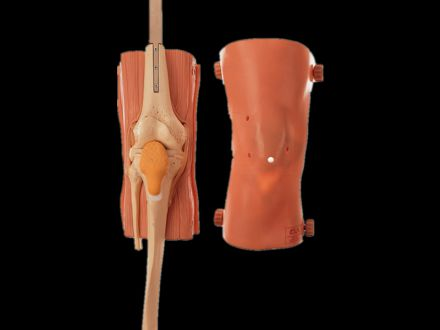 Knee joint arthroscopy