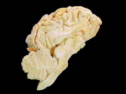 Brain hemisphere of sheep plastinated specimen