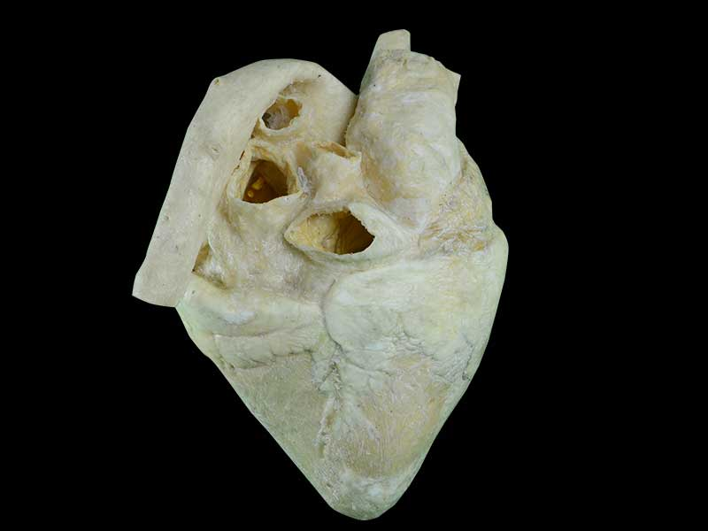 medical heart of cow plastination