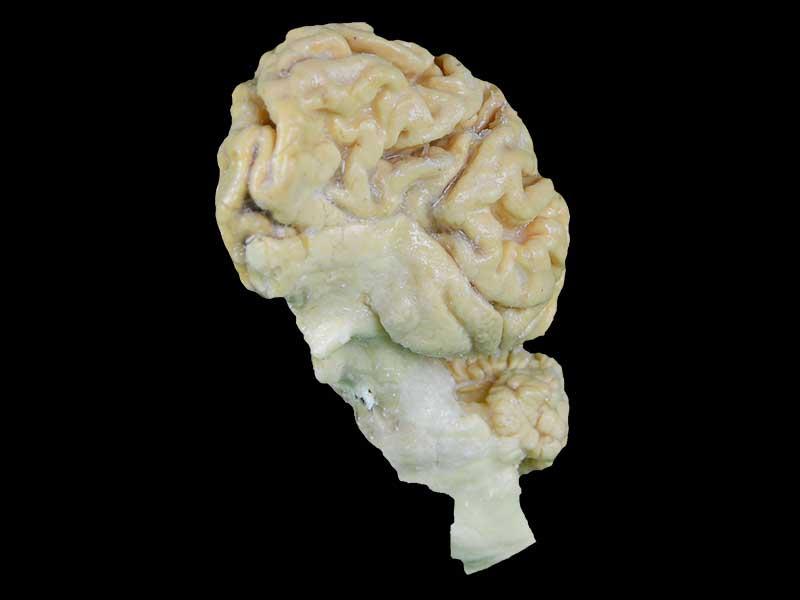 Pig brain hemisphere plastinated specimen,medical teaching model ...