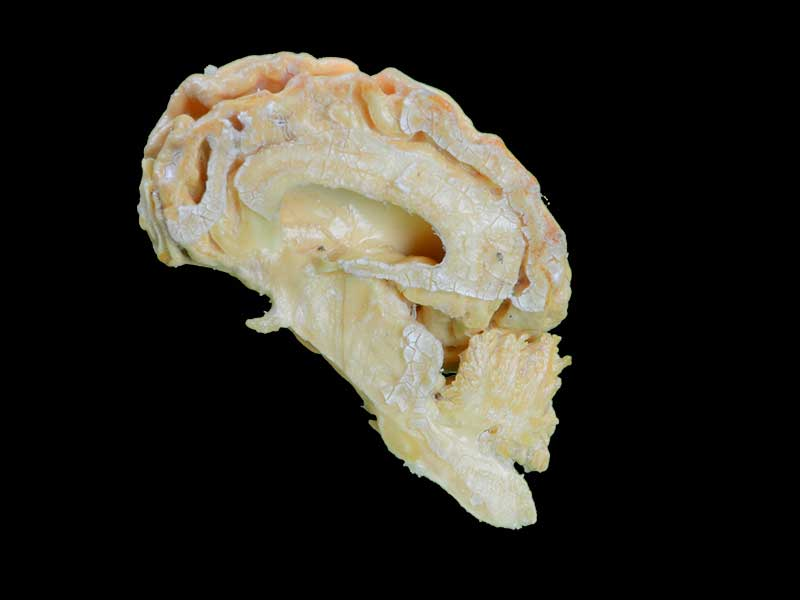 The brain hemisphere of dog plastination animal specimen