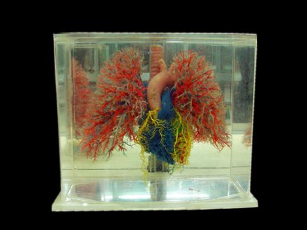 heart lung vascular casting specimens