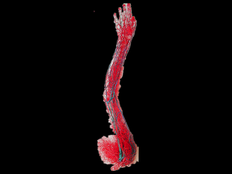 Upper limb vascular casting specimens