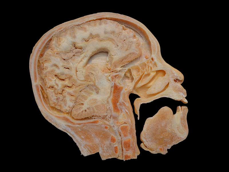 sagittal section of head plastination