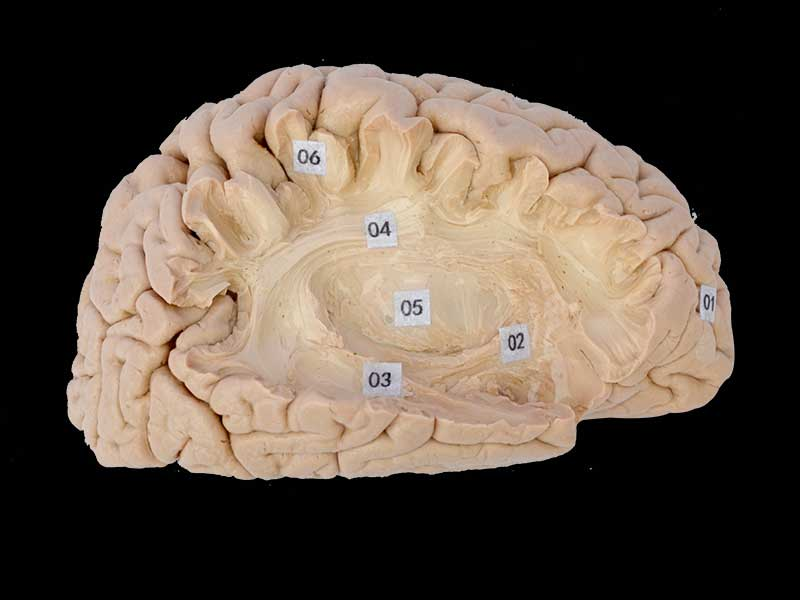 Association fiber of cerebral hemisphere
