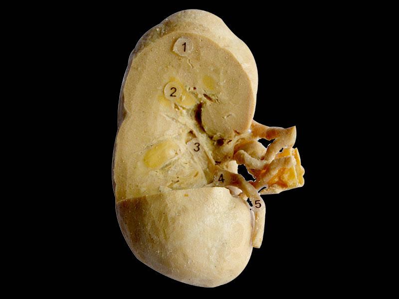Coronal section of kidney 3 quaters plastinated specimen ...