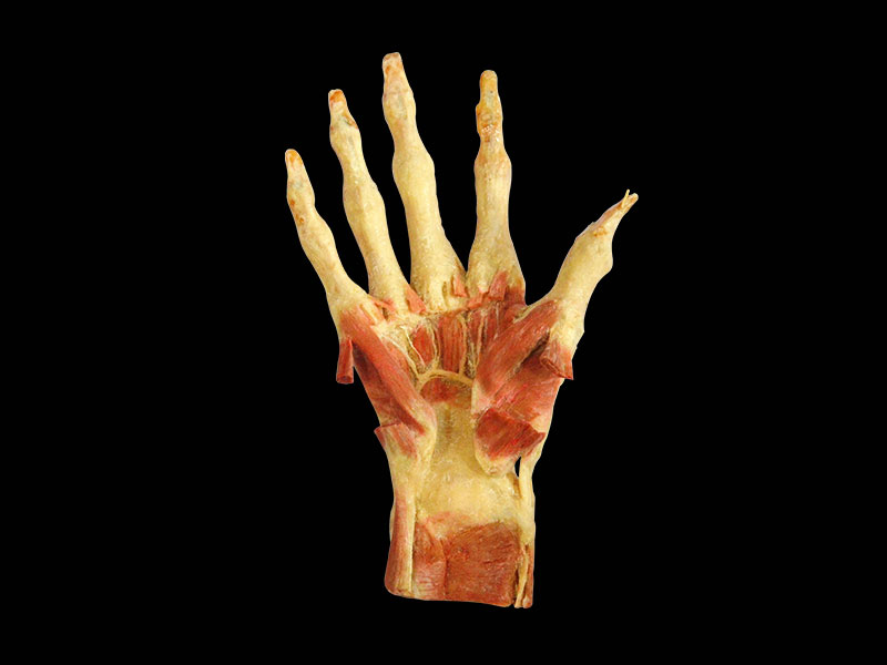 Deep muscles of hand plastinated specimens,hand of human body ...