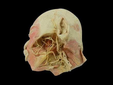 Deep vascular nerve of head and face plastination