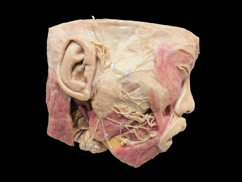 Facial Nerves And Branches Plastinated Specimen Atonamical Model