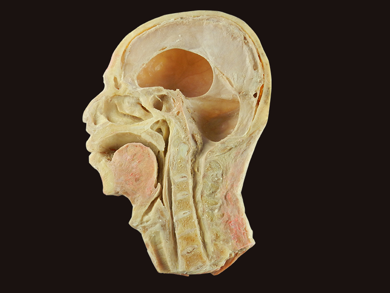 Head and neck sagittal section plastination for teaching,mastication ...