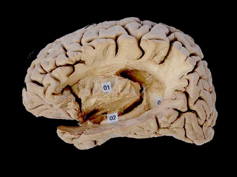 Hippocampal formation plastinated specimens,human body anatomy model ...
