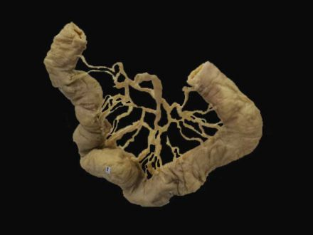 Ileum vascular arcades plastinated specimens (human anatomy specimens)