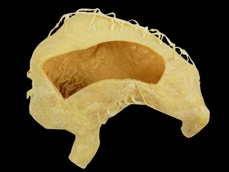 internal structure of stomach specimen