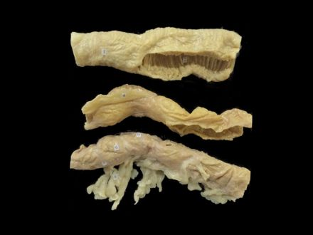 Jejunum ileum colon plastinated specimens(specimen anatomy )