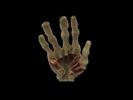Deep muscles of hand plastinated specimens( plastinates of the human body )