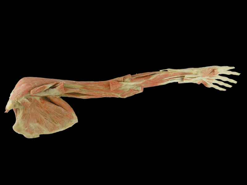 deep muscles of upper limb with shoulder plastination