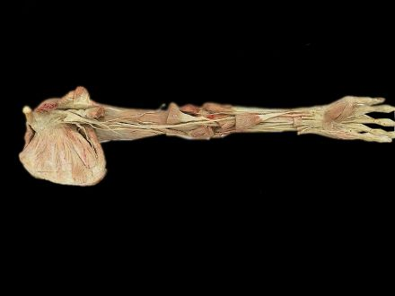Deep muscles of upper limb plastinated specimens(human plastination  )