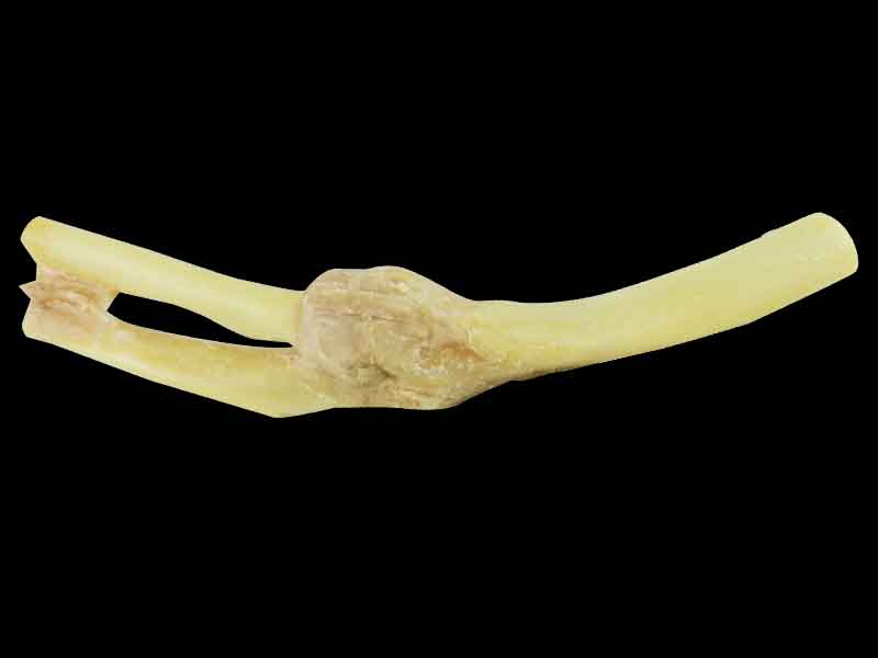 Elbow joint medical specimen