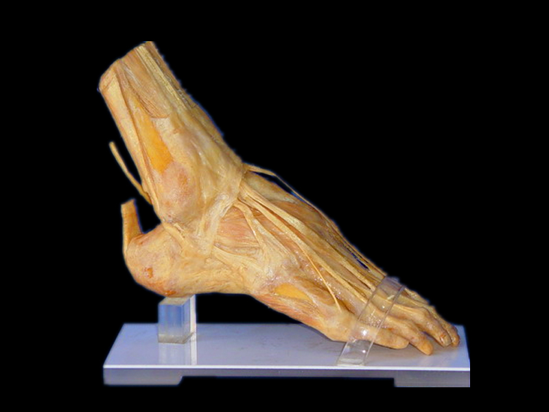 Foot muscles plastinated specimens( plastinated human body )