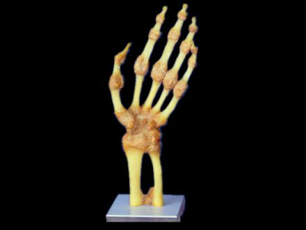 Joint of hand plastinated specimens ( body plastination)
