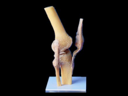 Knee joint plastinated specimens(plastinated body parts )