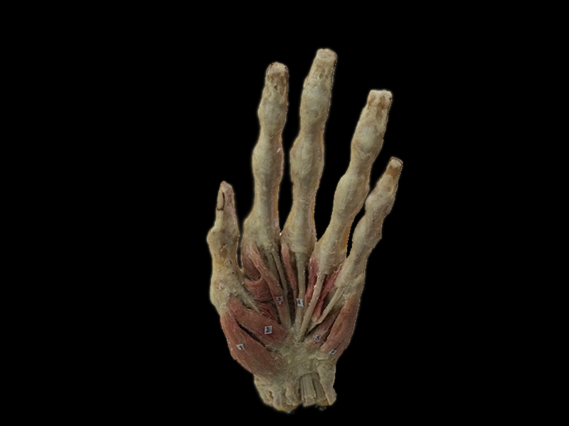 Middle muscles of hand plastinated specimens(human plastinated organ )