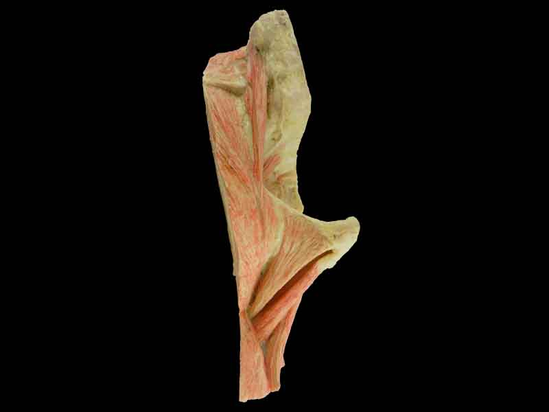 sagittal section of   hip joint plastination