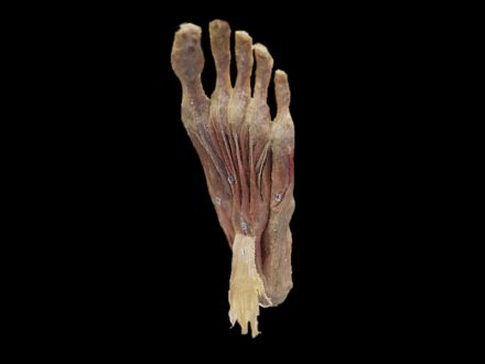 Superfical muscles of foot plastinated specimens(plastination )