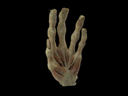 Superficial muscles of hand plastinated specimens (preserved specimen )