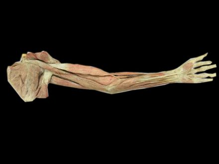 Superficial muscles of upper limb plastinated specimens(preserved specimens )