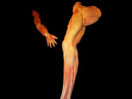 Upper and lower limb muscles plastinated specimens (medical specimen museum )