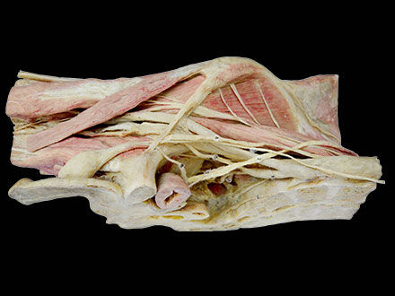 longitudinal section of female pelvis plastinated specimen