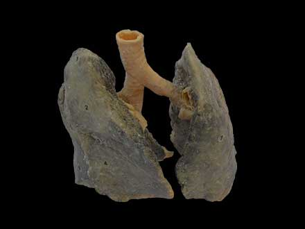 Non smoker lung plastinated specimen