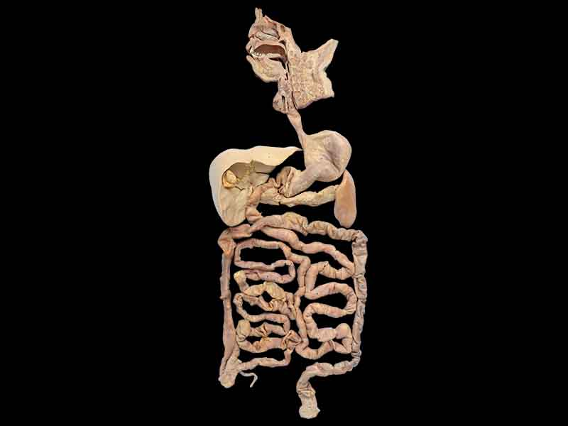 overview of digestive system plastinated specimen