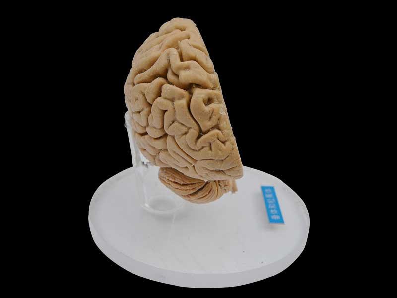 Pituitary and pineal gland plastinated specimen, atonamical