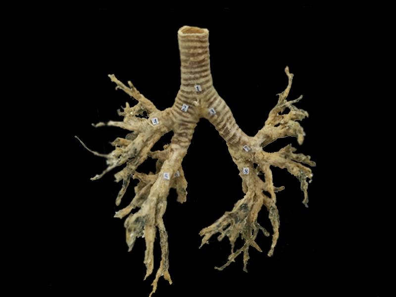 Bronchial tree plastinated specimens,human anatomy model ...