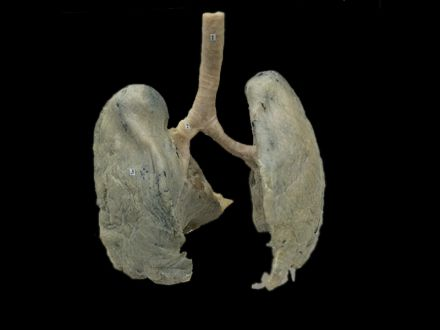 Double lungs plastinated specimens (von hagens plastination  )
