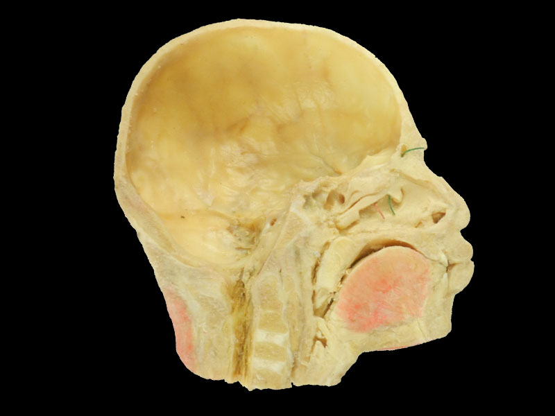 Paranasal sinuses and its opening plastinated specimen