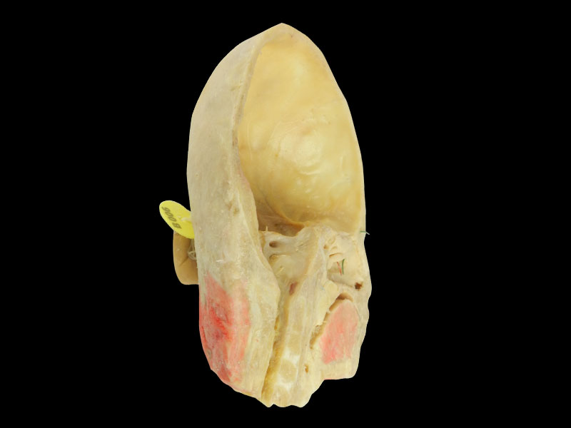 Paranasal sinuses and its opening plastination