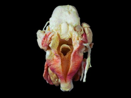 Pharynx and larynx plastinated specimens(plastination process  )
