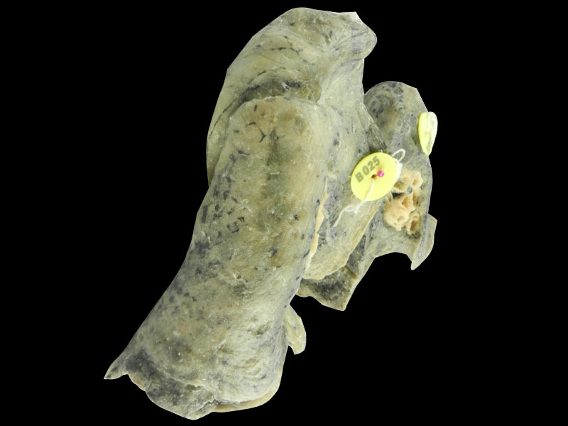 Root of the lung plastinated specimen