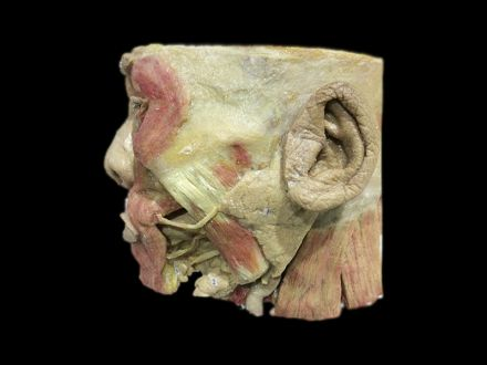 Salivary gland plastinated specimens (plastinated specimen for sale)