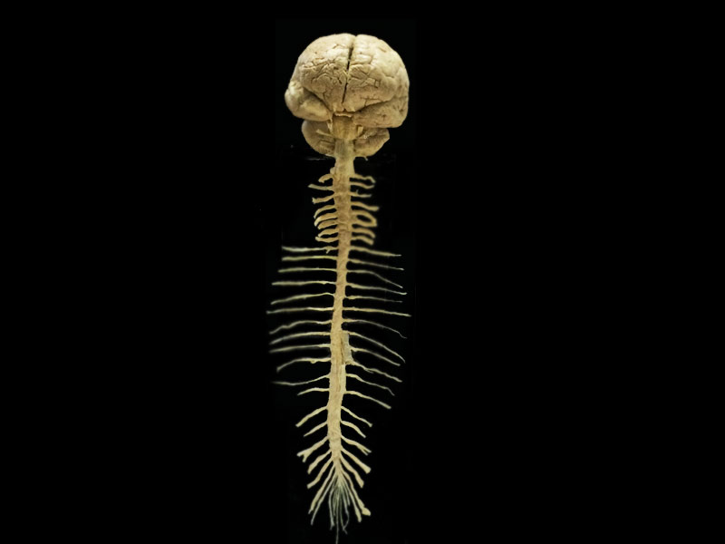 Brain and spinal cord specimens plastinated specimens,human body ...