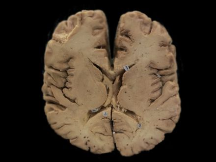 Horizontal section of brain through internal capsule plastinated specimens