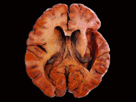 Lateral ventricles plastinated specimens