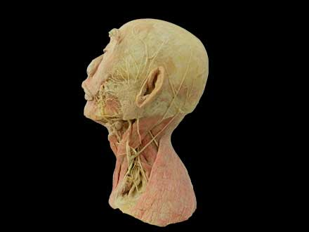 Superficial vascular nerve of head and neck plastination