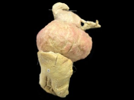 Female genitalia - (in vitro) plastinated specimens