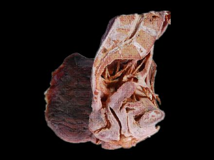 Median saggital section of female pelvis plastinated specimens